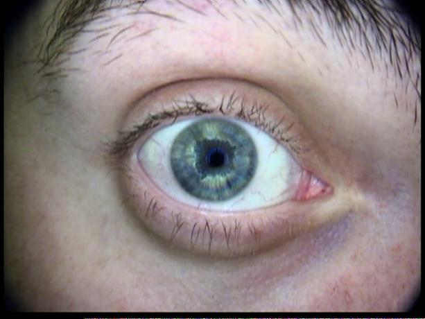 Patient Exam Cameras - AMD 2500 - Eye 02
