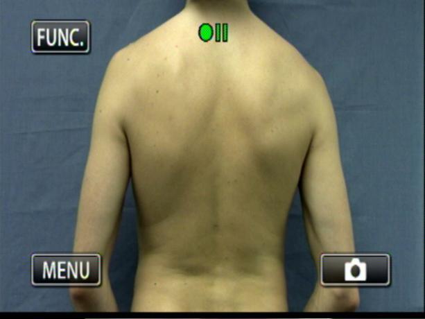 Patient Exam Cameras - Canon HF-M31 - Back