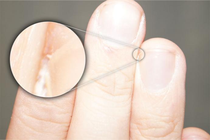 DSLR - Finger - Zoom External Lighting - B