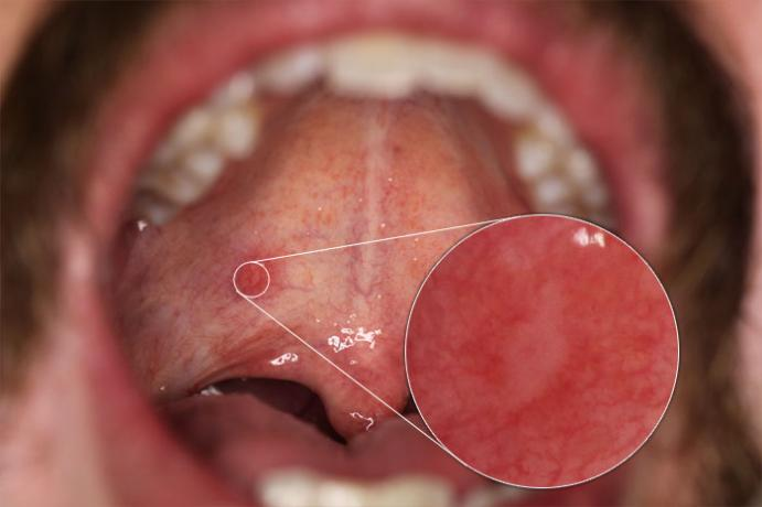DSLR - Oral Cavity - Macro External Lighting - A