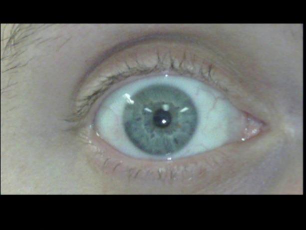 Patient Exam Cameras - Insignia NS-DV720P - Eye 01
