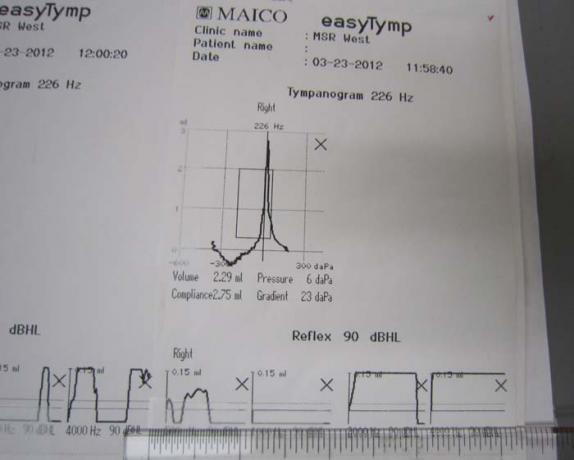 Tympanometers - MT10 - Printout