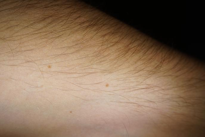Sony DSC-QX10 Skin and Moles