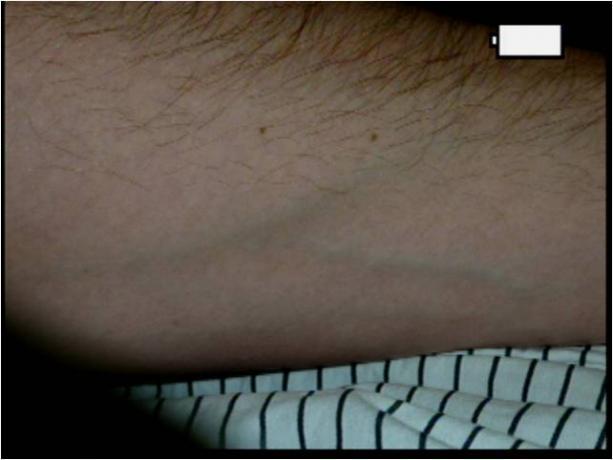 Patient Exam Cameras - Capture Review - Panasonic DMC-ZS3 - Mole