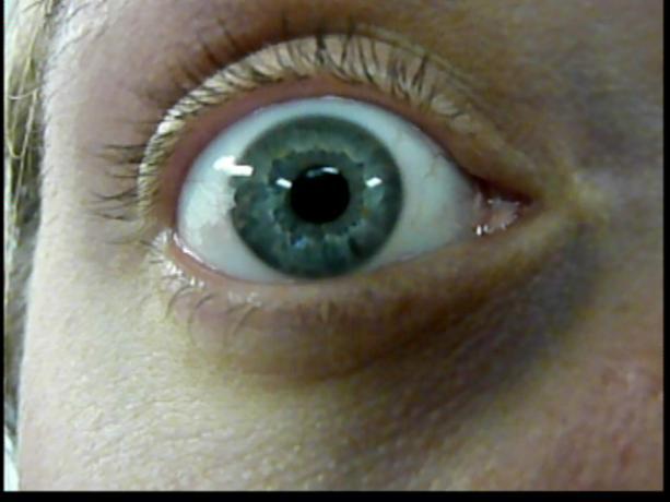 Patient Exam Cameras - Panasonic DMC-ZS3 - Eye 01