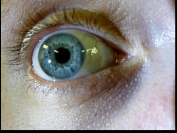 Patient Exam Cameras - Panasonic DMC-ZS3 - Eye 02