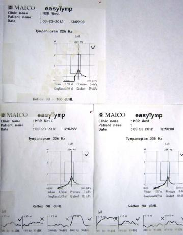 Tympanometers - Printout - easyTymp - B