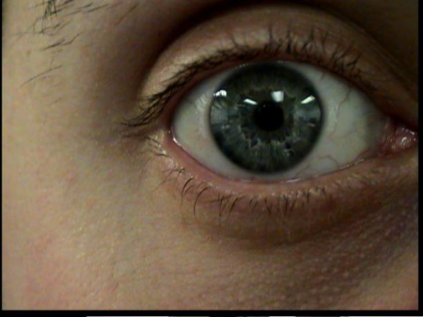 Patient Exam Cameras - Sony DCR-TRV38 - Eye 02