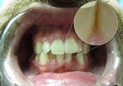 DSLR - Oral Frontal - Macro Room Lighting - B