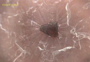 Flexicam: Dermatology Probe 3