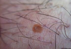 olloclip: Skin - Macro