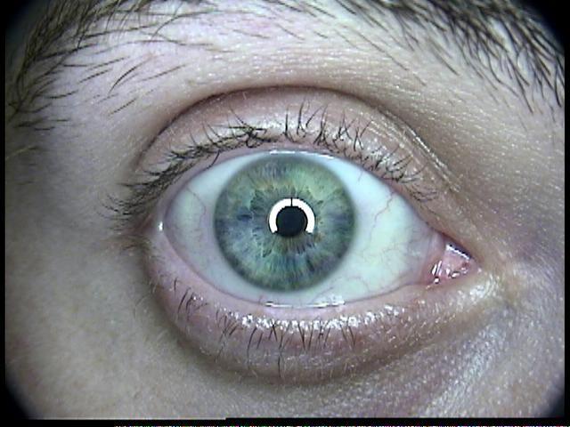 Patient Exam Cameras - AMD 2500 - Eye 01