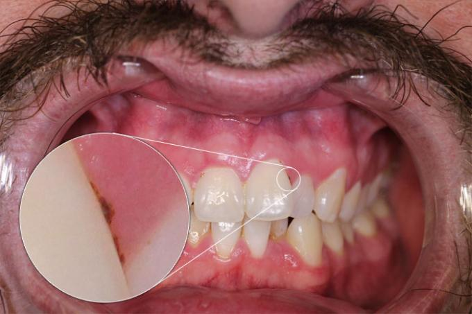 DSLR - Oral Frontal - Macro External Lighting - A