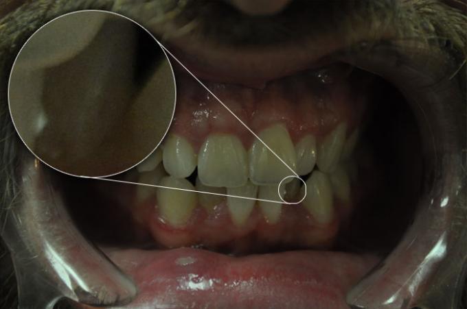 DSLR - Oral Frontal - Zoom Room Lighting - B