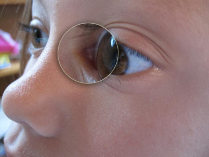Basic Comparison - Eye A Detail - Color Rating 4, Detail Rating 3