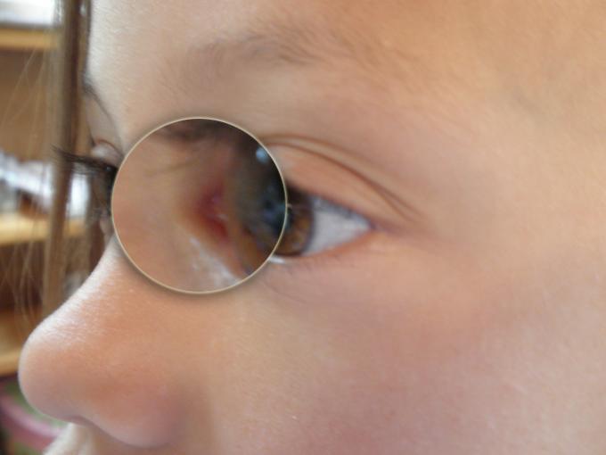 Basic Comparison - Eye C Detail - Color Rating 4, Detail Rating 2