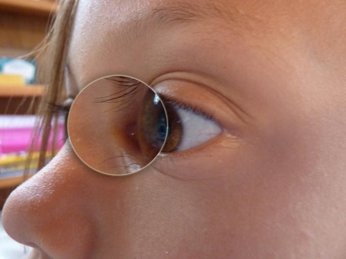Basic Comparison - Eye D Detail - Color Rating 4, Detail Rating 4