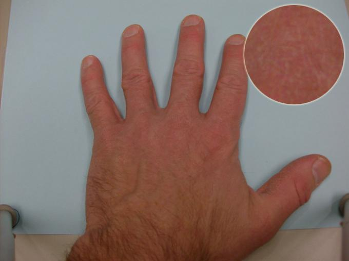 Hand B Detail - Color Rating 3, Detail Rating 1