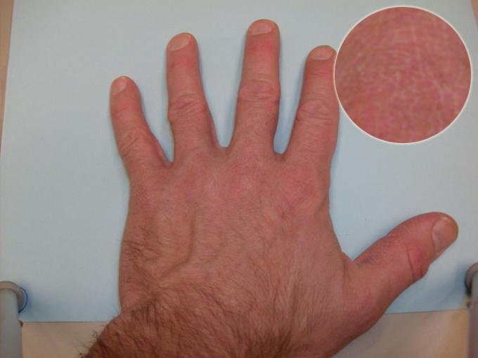 Hand C Detail - Color Rating 3, Detail Rating 2