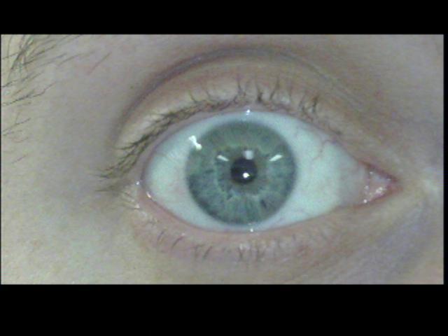 Patient Exam Cameras - Insignia NS-DV720P - Eye 02