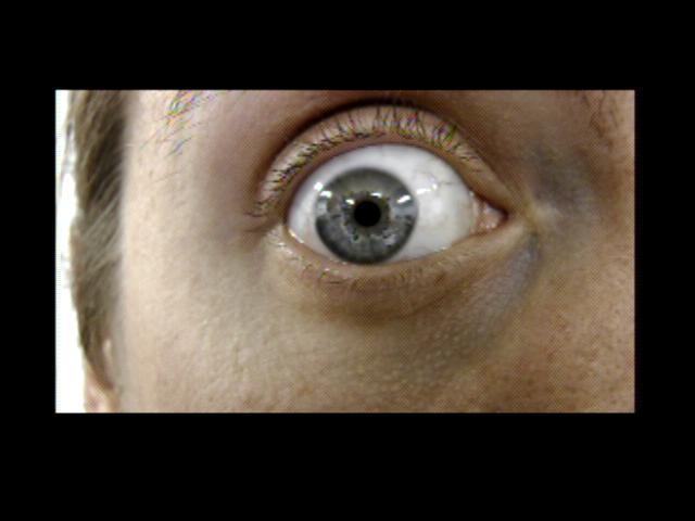 Patient Exam Cameras - Panasonic HDC-700TM - Eye 01