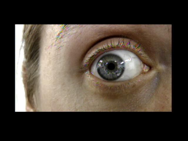 Patient Exam Cameras - Panasonic HDC-700TM - Eye 02