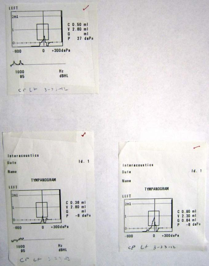 Tympanometers - Printout - MT10 - A