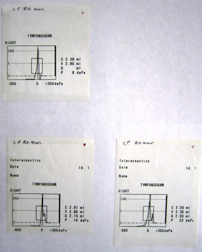 Tympanometers - Printout - MT10 - B