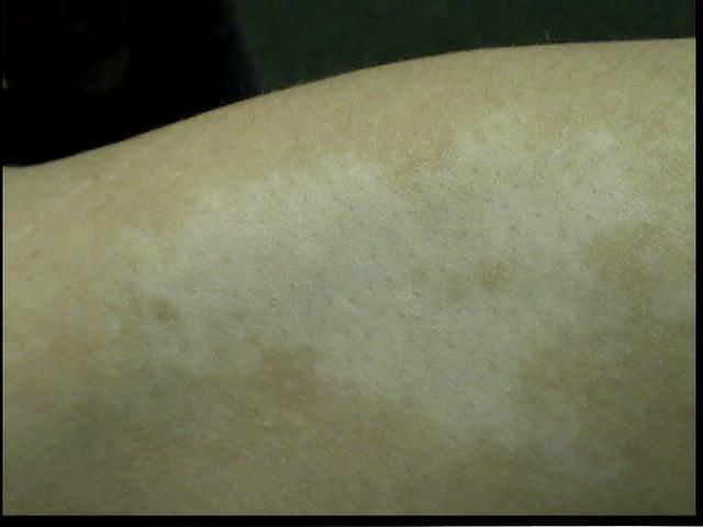 Patient Exam Cameras - Sony DCR-HC40 - Vitiligo